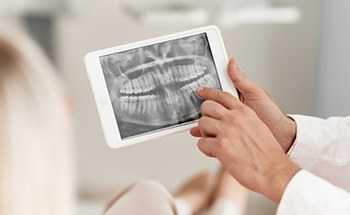 Dental x-rays on tablet computer