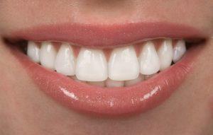 smile porcelain veneers